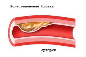 холестерин профилактика снижения